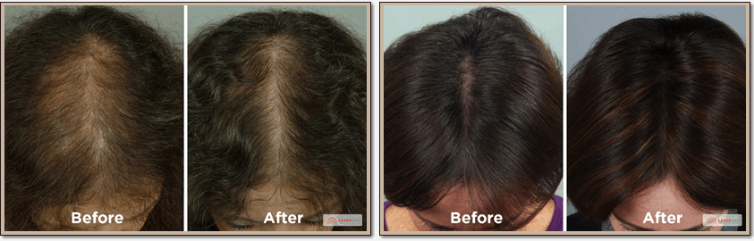 Lasercap LCPRO Laser Hair Restoration Before and After