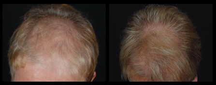Women's Hair Loss Treatment Before And After