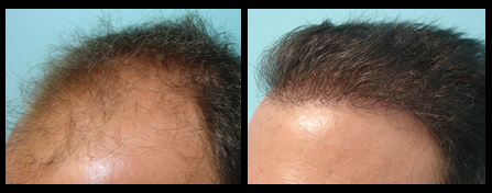 Male Hair Loss Treatment Before And After