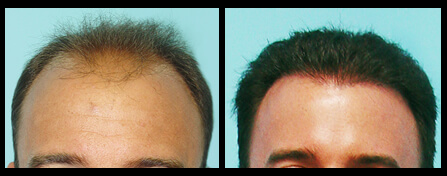 Treatment For Hair Loss Before And After
