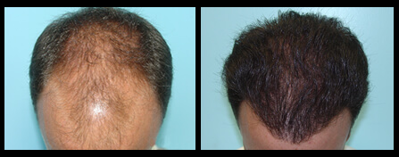 Balding Treatment Before And After